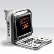 Купить аппарат УЗИ SonoScape A6